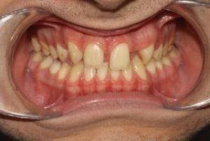 αισθητικη προσθιων δοντιων-πριν