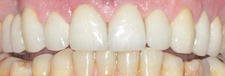 Το οδοντιατρείο μας στη Μαρίνα Ζέας, κέντρο του Πειραιά προσφέρει φωτεινά χαμόγελα με εμφυτεύματα, όψεις πορσελάνης, ρητίνης, λεύκανση δοντιών με laser, αισθητική ψηφιακή οδοντιατρική!
