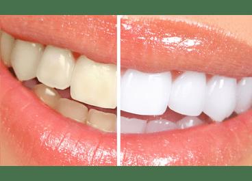 Λευκανση δοντιων,Ρομποτική Οδοντιατρική Αισθητικη Οδοντικά Εμφυτευματα Πειραιά