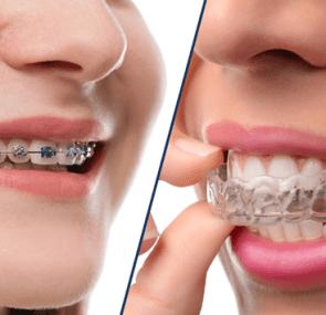 Invisalign-unsichtbare Zahnspange