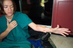 Sarah's cut up arm 2