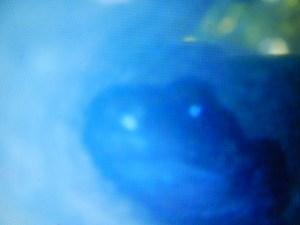 Endoskop Blick auf Ameisenfrosch