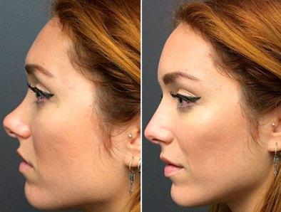 Resultado de imagen de acido hialuronico antes y despues nariz