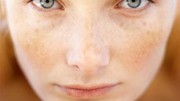 How-to-get-rid-of-brown-spots-on-the-face