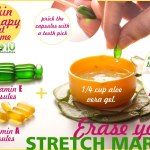 10-stretch-marks-removal-remedies