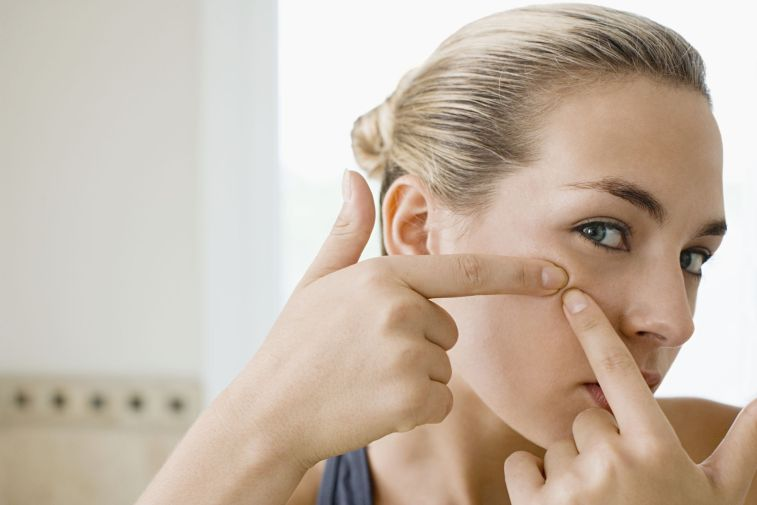 10-effective-home-remedies-for-pimples-on-chin