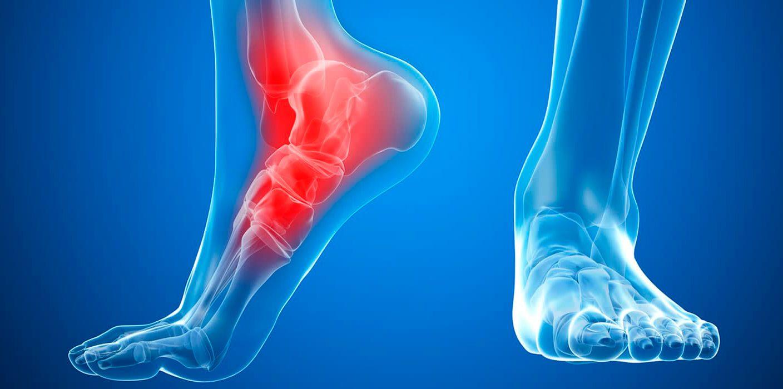 Травма голеностопного сустава лечение
