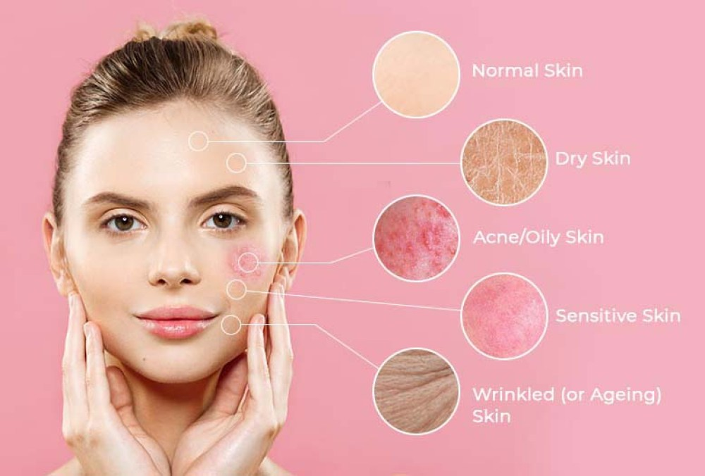 Hempseed-oil-benefits-in-acne-skin-condition
