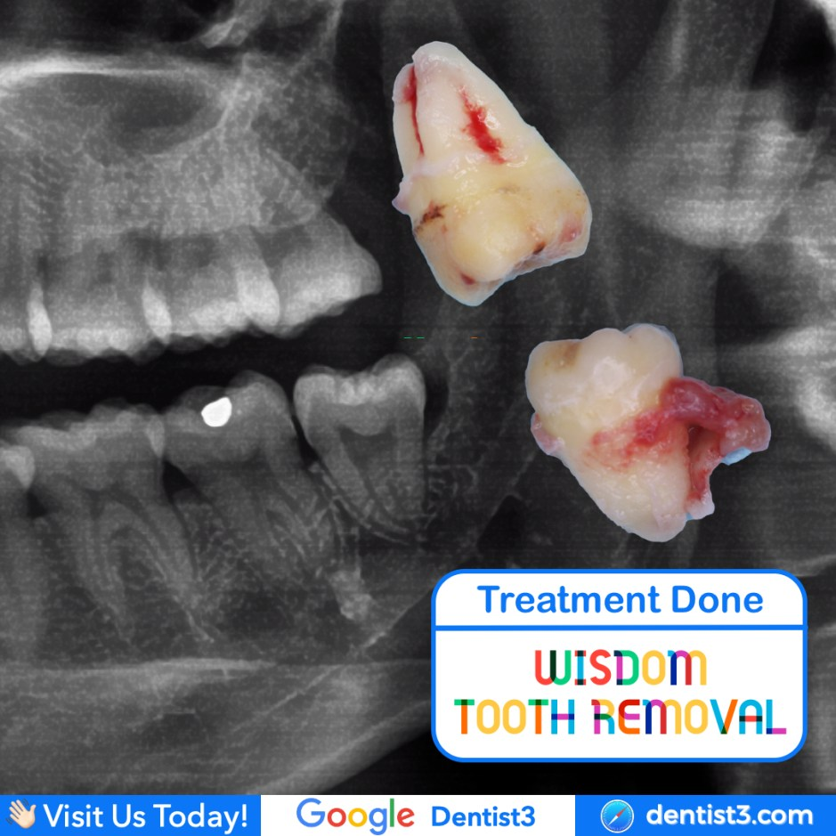 wisdom-tooth-removal.jpg