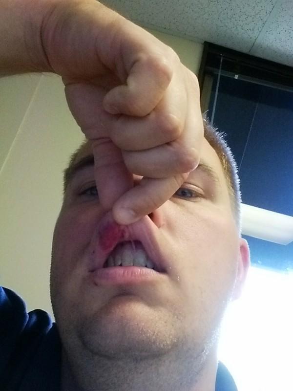 Bruising on my lip the next day.