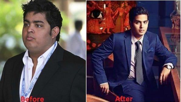 akash ambani before after photo