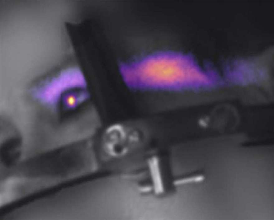 Luz de Cherenkov visto em olho de paciente.  (Imagem: Lesley Jarvis)