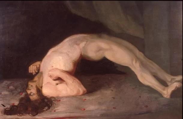 Espasmos musculares de um paciente que sofre de tétano. Pintado por Charles Bell em 1809, Domínio público.