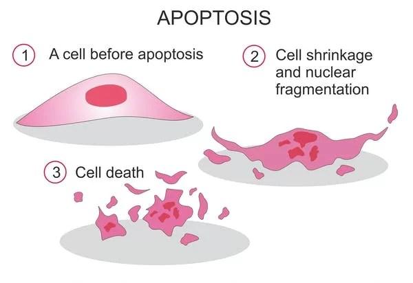 A proteína EGF-antraz se liga às células cancerígenas da bexiga, desencadeando apoptose ou morte celular programada, que é um processo regulado que leva à morte celular. (Soleil Nordic / Shutterstock.com)