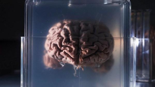 Cientistas europeus, do Reino Unido, Suíça, Alemanha e Itália desenvolveram uma rede neural, permitindo que neurônios artificiais e biológicos se comunicassem pela internet.