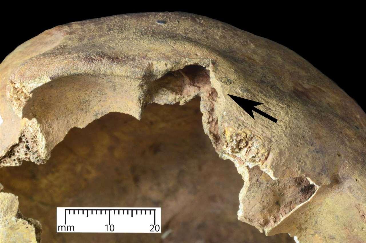 Ferimento causado por arco medieval
