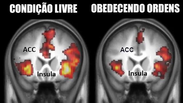 Receber ordens afeta a atividade cerebral e diminui empatia