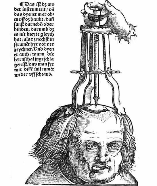 Trepanação Craniana