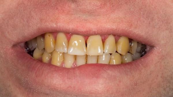 evite que o café estrague seus dentes