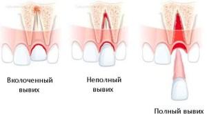 Вывих зуба: полностью выпал зуб, неполный, вколоченный