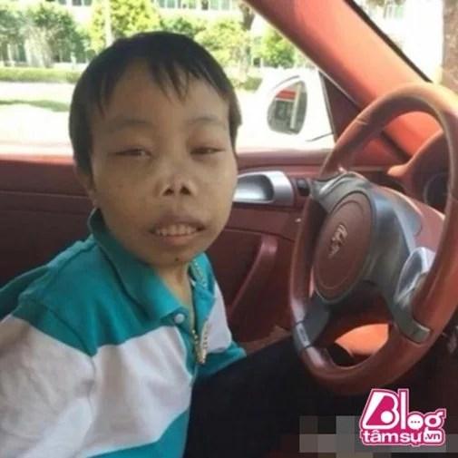 Hình ảnh mới nhất của đại gia xấu nhất thế giới Trần Sơn sau nhiều ngày chống chọi bệnh hiểm nghèo - Ảnh 1.