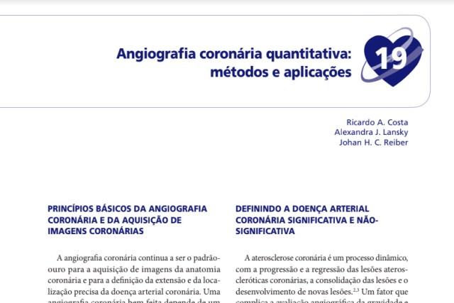 Angiografia coronaria cuantitativa: métodos y aplicaciones