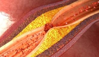 colesterol ldl placas coronarias