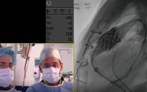 Implante de válvula Melody en conducto
