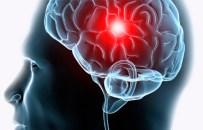 revascularizacion carotídea stroke