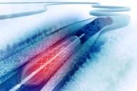 Stent directo vs angioplastia convencional y sus interacciones con la trombo-aspiración