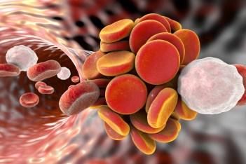 Tromboaspiración vs trombectomía