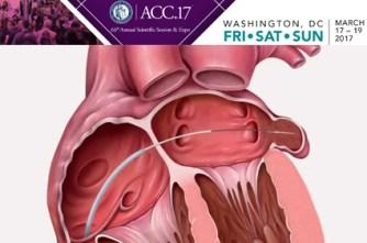 Ocluir o apêndice atrial esquerdo durante uma cirurgia