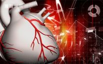 DKCRUSH-V: El tronco de la coronaria izquierda no es una bifurcación más