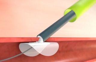 DEFENSE-PFO: el cierre FOP con ciertas características disminuye eventos combinados y stroke