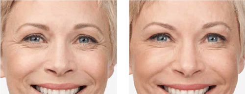 Botox Woman Before & After