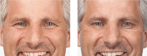 Botox Man Before & After