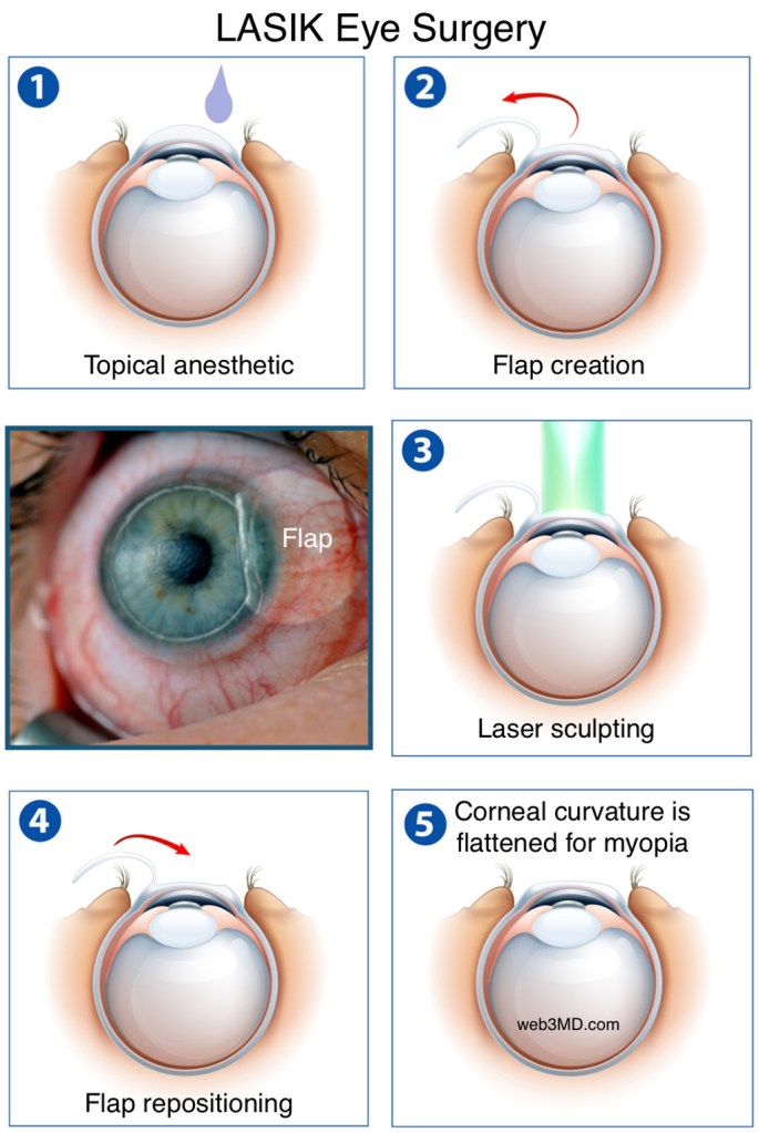 lasik laser procedure