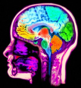 AKR0GD Magnetic resonance scan MRI of the head computer enhanced and colorized to show the normal anatomy of the brain and head