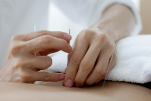 acupuncture-lower-back
