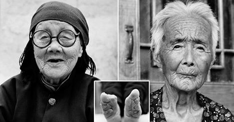 Last living Chinese women with bound feet pictured