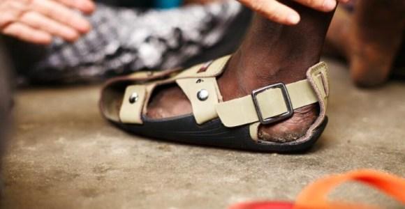 Projeto cria calçado que cresce 5 números para ajudar crianças pobres