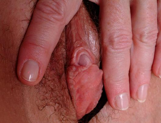 Bilder på klitoris