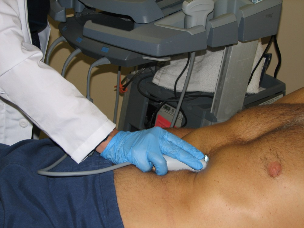 SonoApp: IVC ultrasound - aka