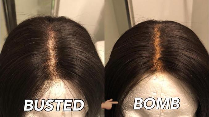 what is a hair closure