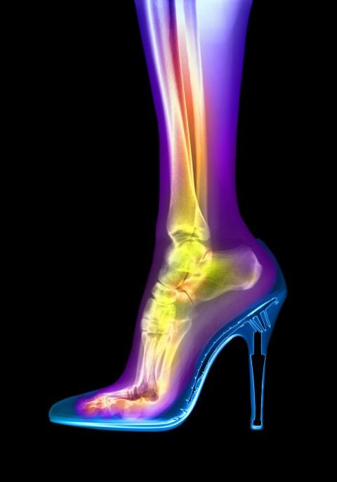 I May Never Heel Again!