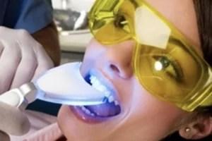clareamento dental com peróxido de hidrogênio