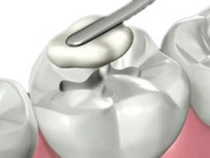 restauração obturação de dente
