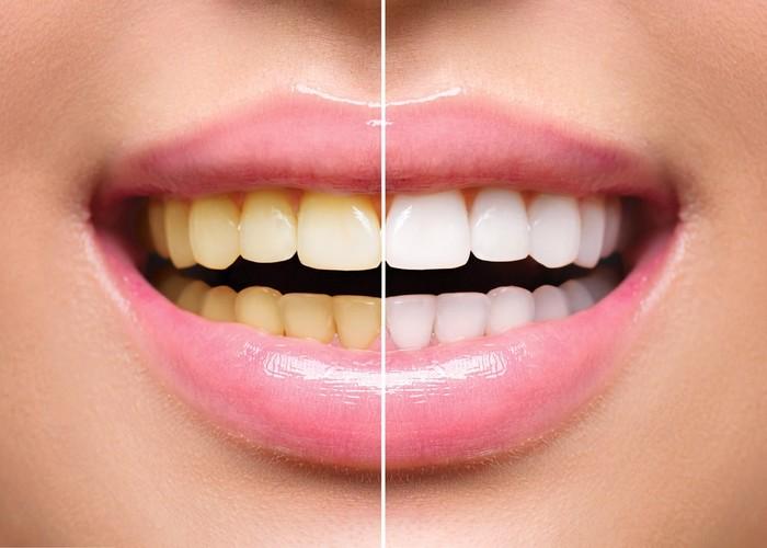 Descubra como ter dentes brancos em 1 hora!