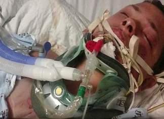E-sigarett eksploderte i 23 åringens ansikt..Nå advarer guttens far andre