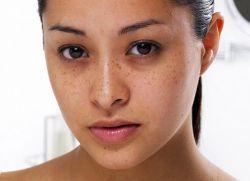 Кровоизлияние на лице